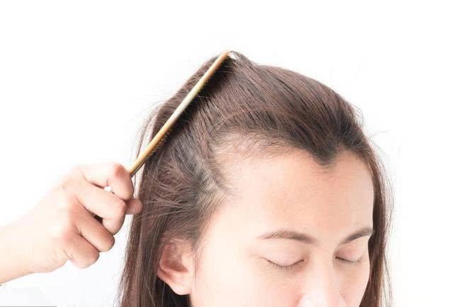 女生头发稀少、发际线后移怎么办?